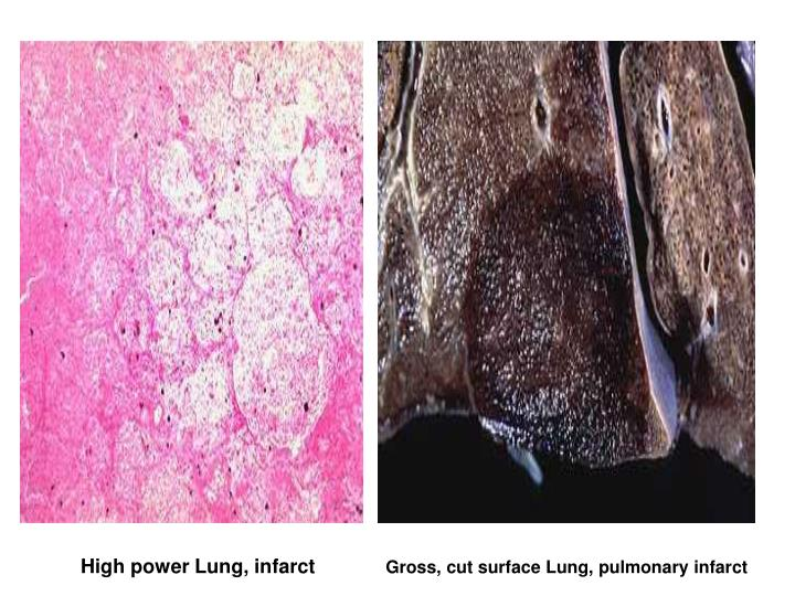Gross, cut surface Lung, pulmonary infarct