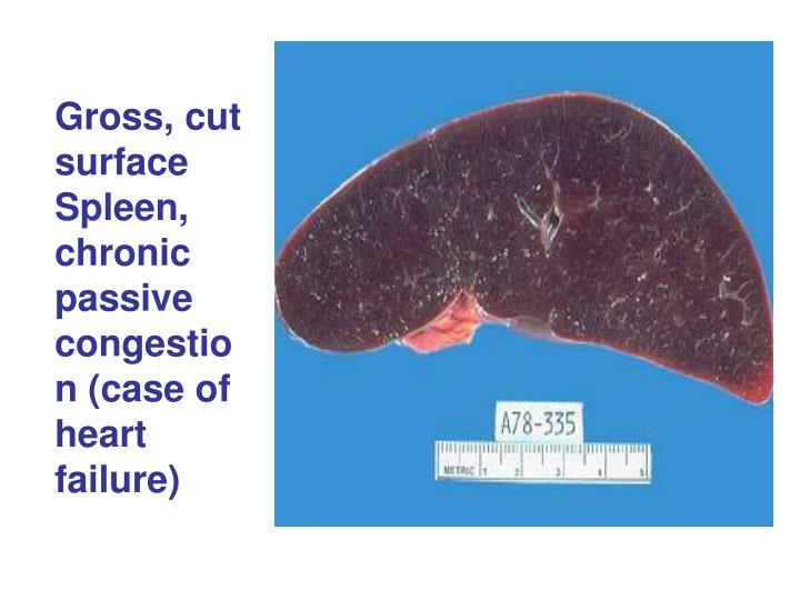 Gross, cut surface Spleen, chronic passive congestion (case of heart failure)