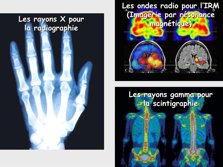 Les ondes radio pour l'IRM
