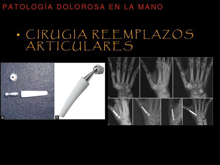 Cirugia reemplazos articulares