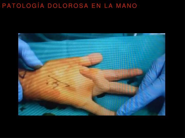 Patología dolorosa en la mano