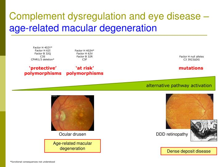 Complement dysregulation and eye disease –