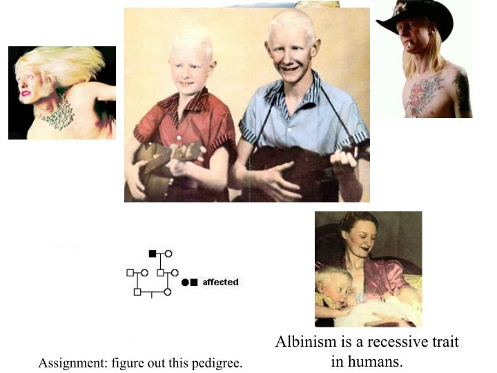 Albinism is a recessive trait in humans.