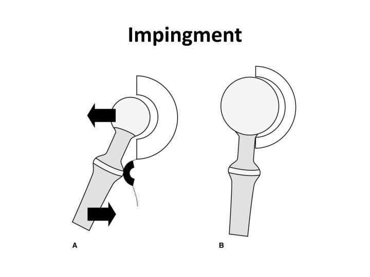 Impingment