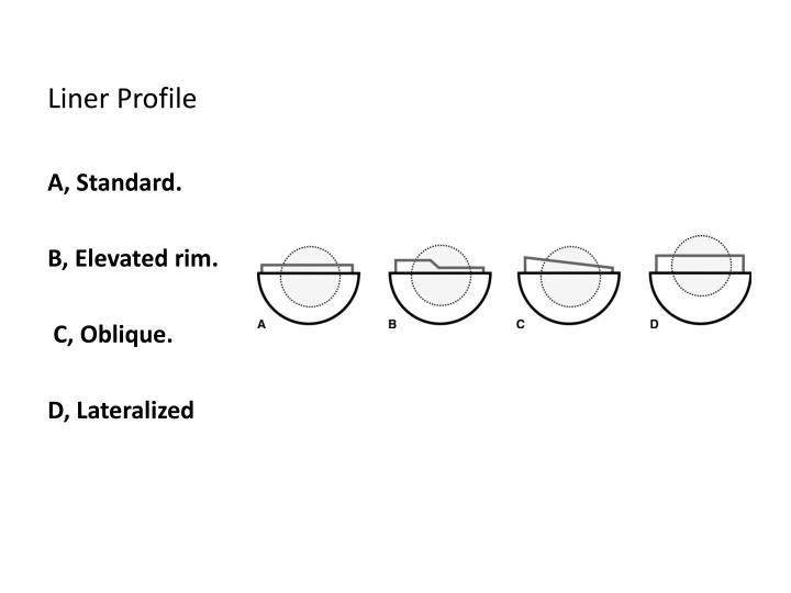 Liner Profile