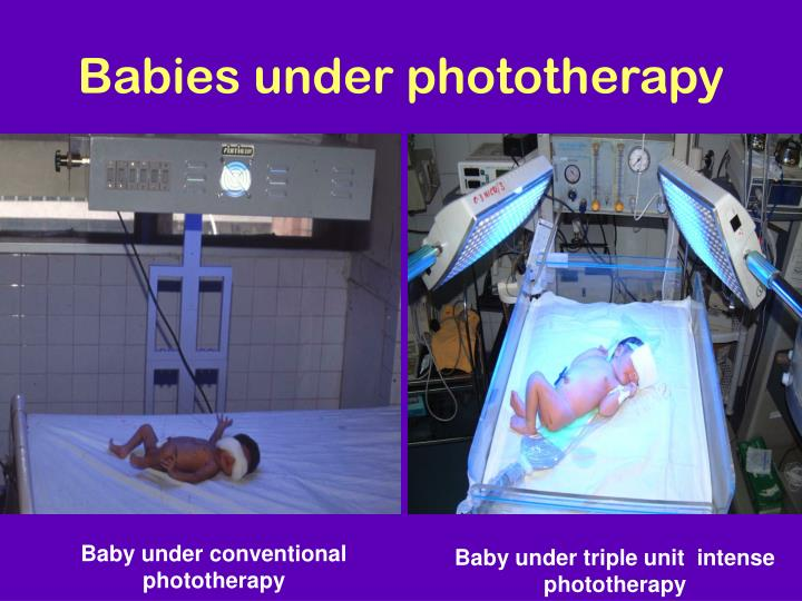 Babies under phototherapy