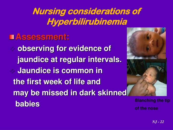 Nursing considerations of Hyperbilirubinemia