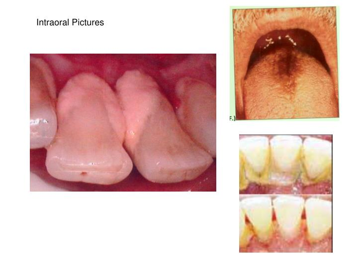 Intraoral Pictures