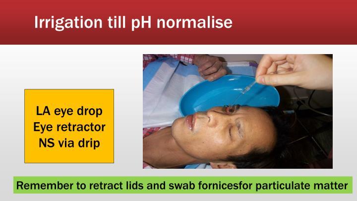 Irrigation till pH normalise
