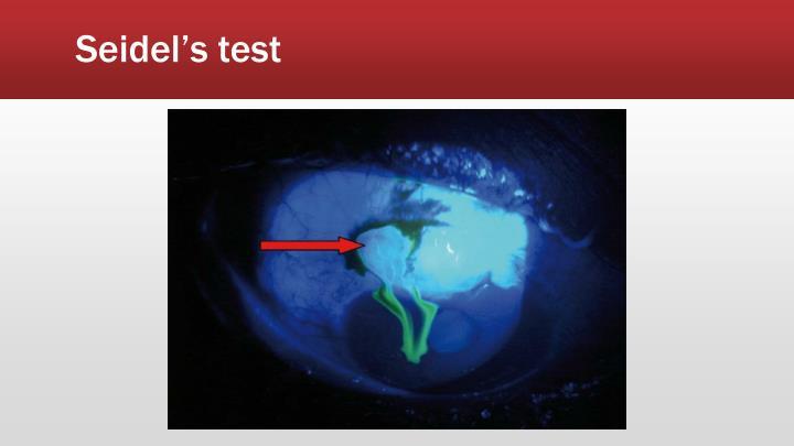 Seidel's test