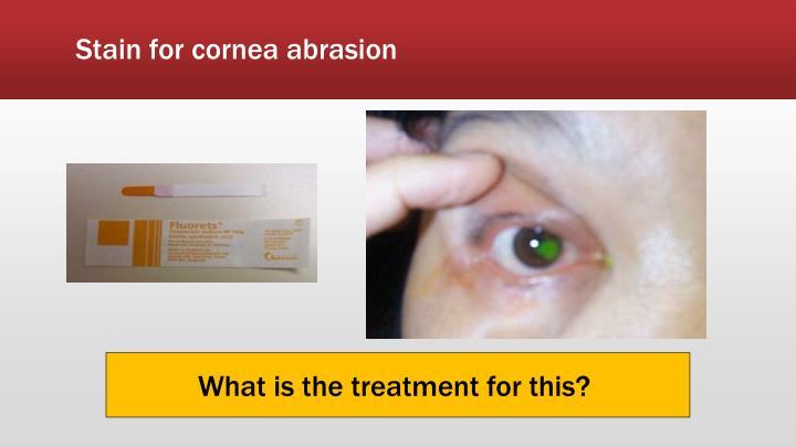 Stain for cornea abrasion