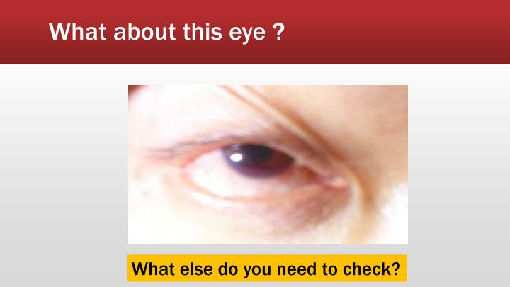 What about this eye ?