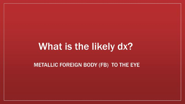 What is the likely dx?