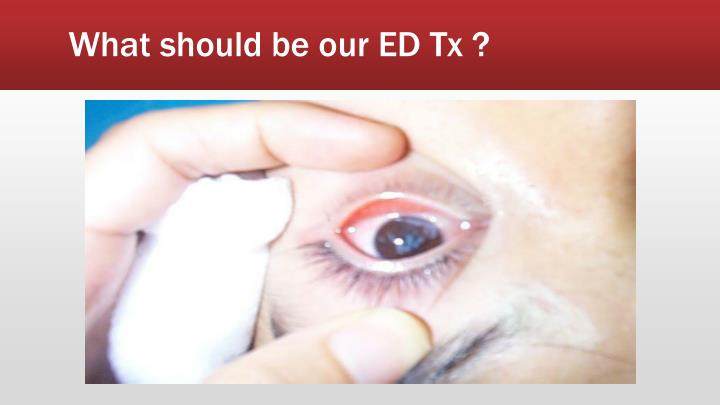 What should be our ED Tx ?