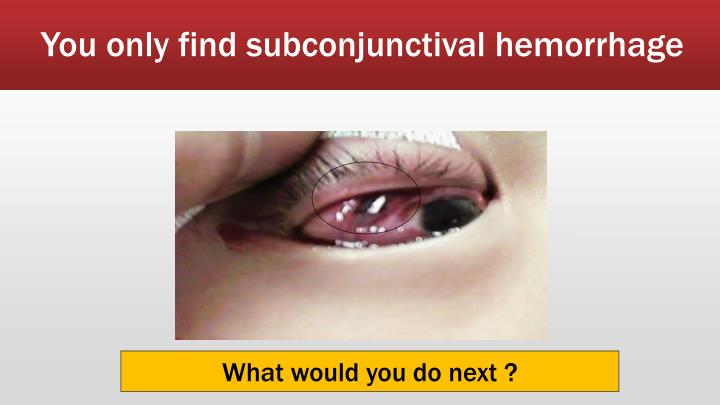 You only find subconjunctival hemorrhage