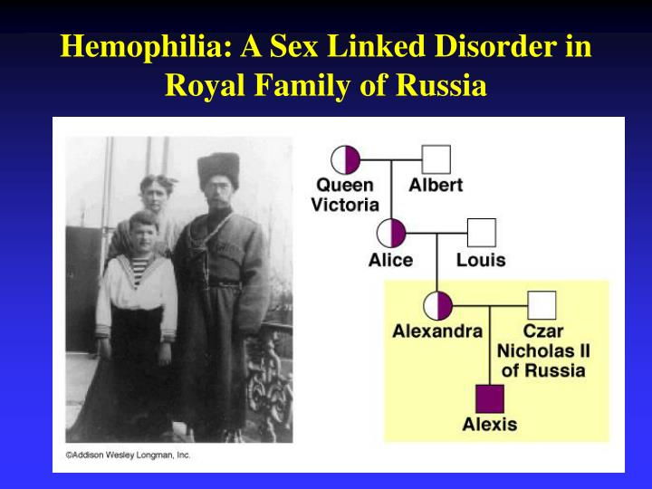 Hemophilia: A Sex Linked Disorder in Royal Family of Russia
