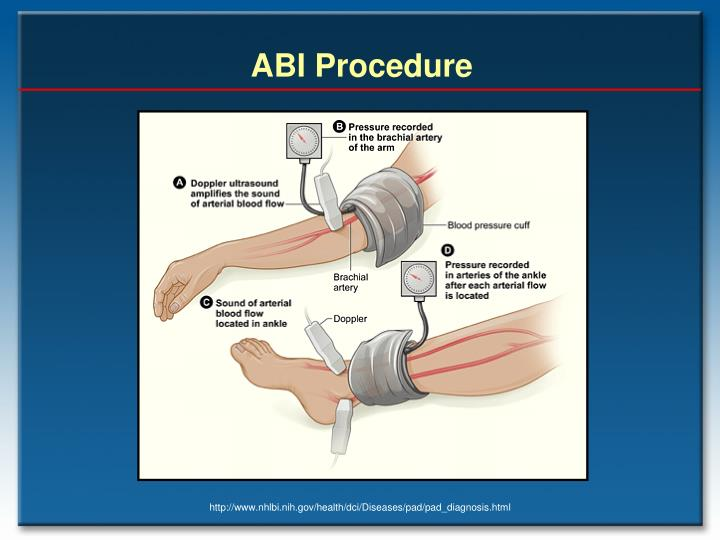 ABI Procedure