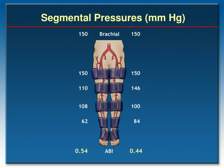 Segmental Pressures (mm Hg)