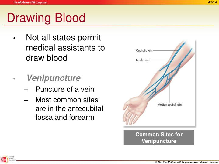 Common Sites for Venipuncture