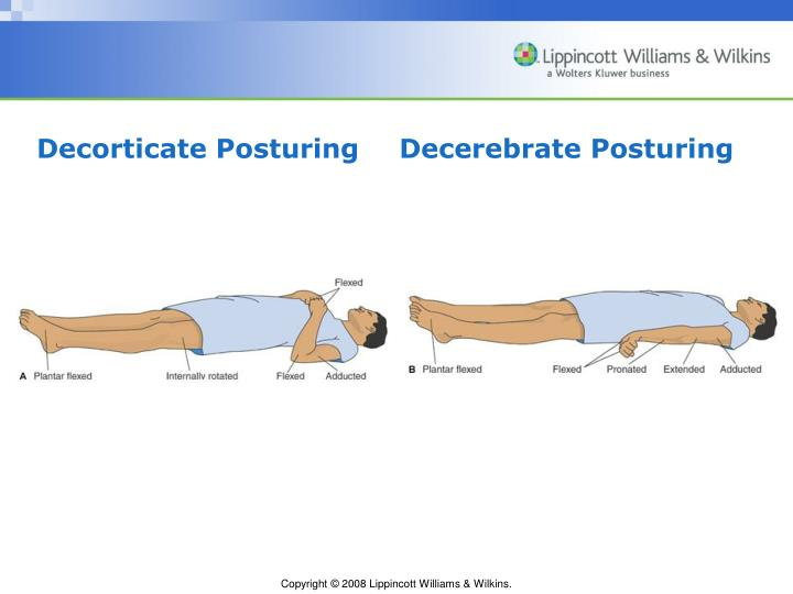 Decorticate Posturing