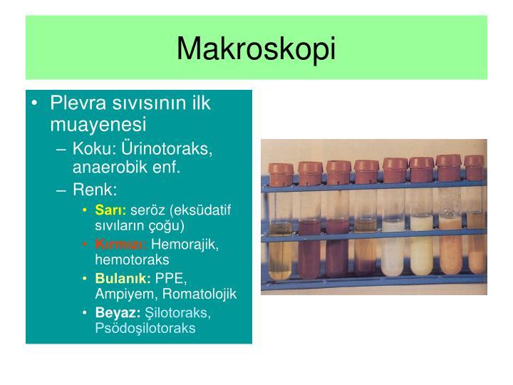 Makroskopi