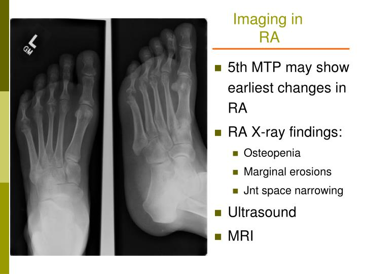 Imaging in RA