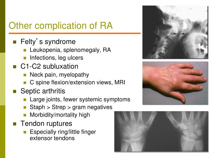 Other complication of RA