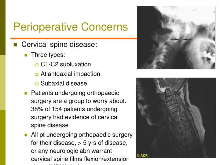 Perioperative Concerns