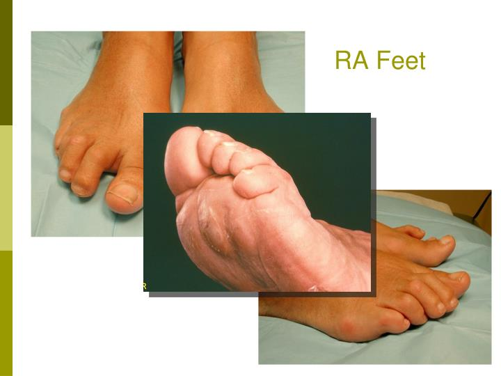 RA Feet