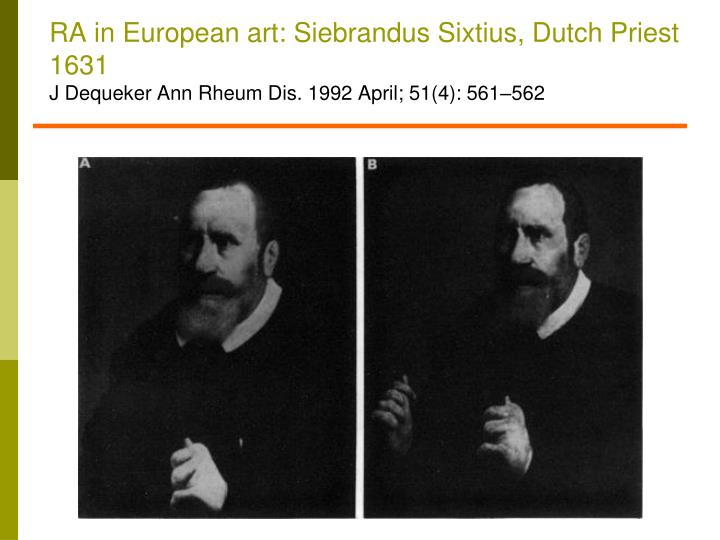 RA in European art: Siebrandus Sixtius, Dutch Priest 1631
