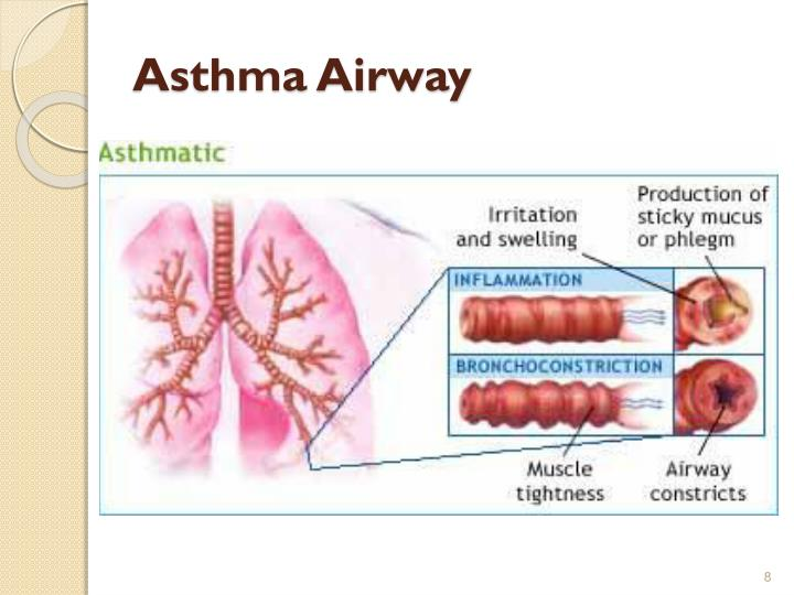 Asthma Airway