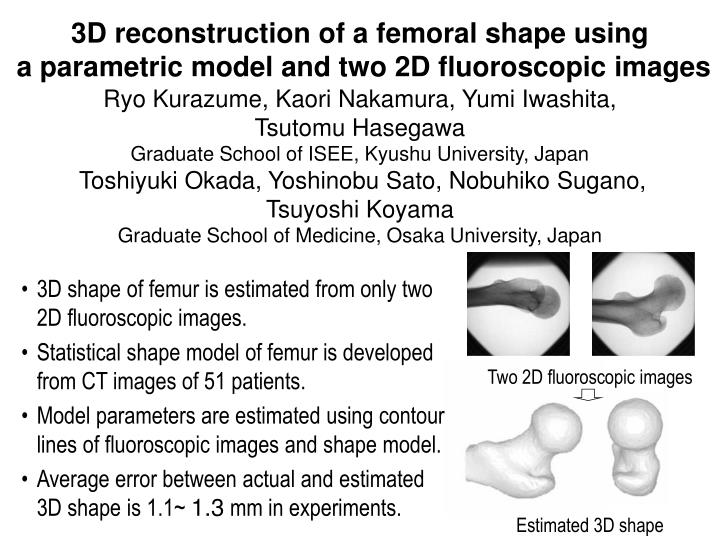 3D reconstruction of a femoral shape using