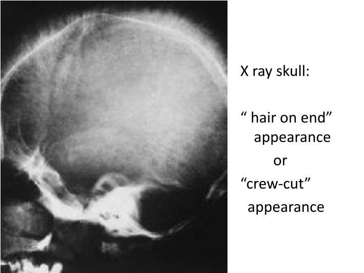 X ray skull: