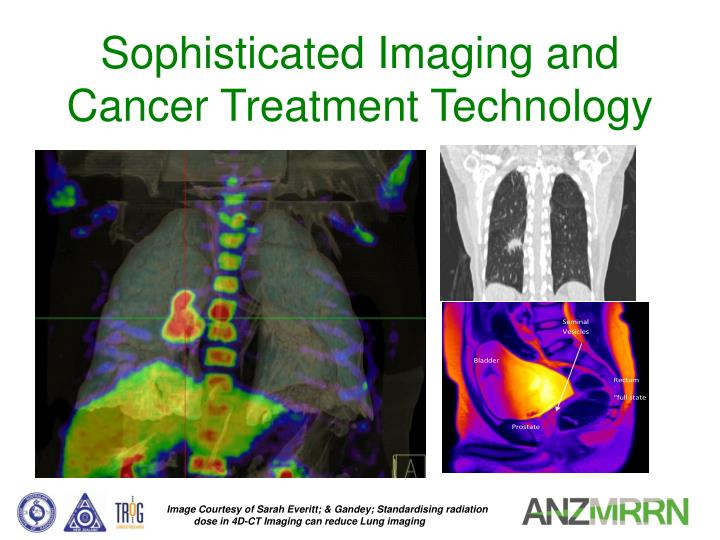 Sophisticated Imaging and Cancer Treatment Technology