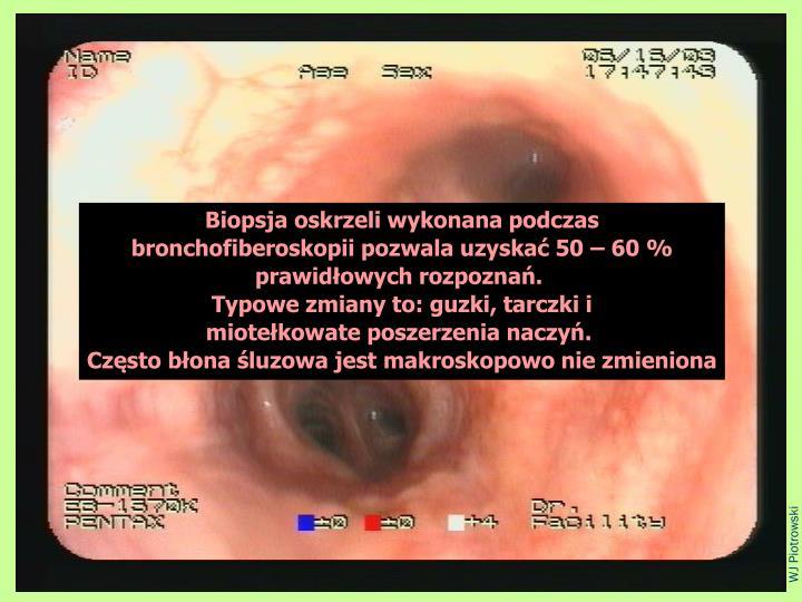 Biopsja oskrzeli wykonana podczas