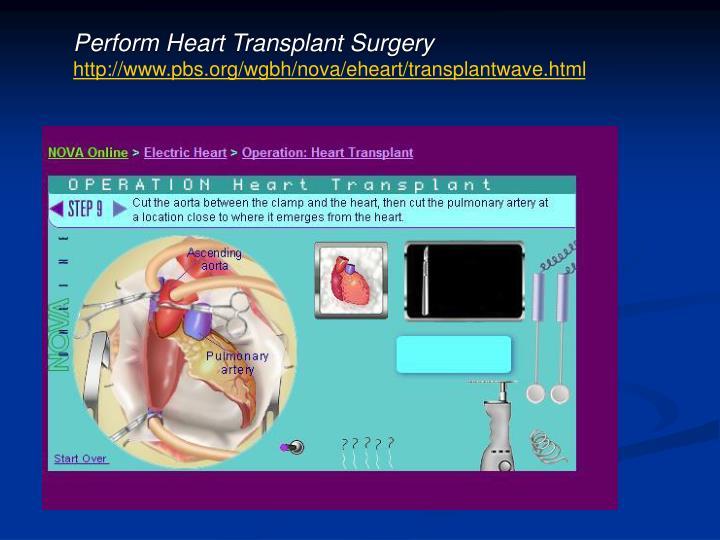 Perform Heart Transplant Surgery