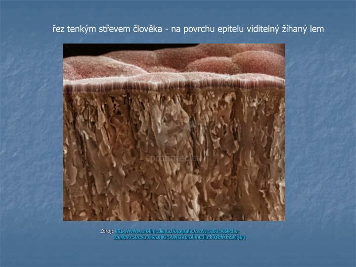 řeztenkým střevem člověka - na povrchuepiteluviditelný žíhaný lem