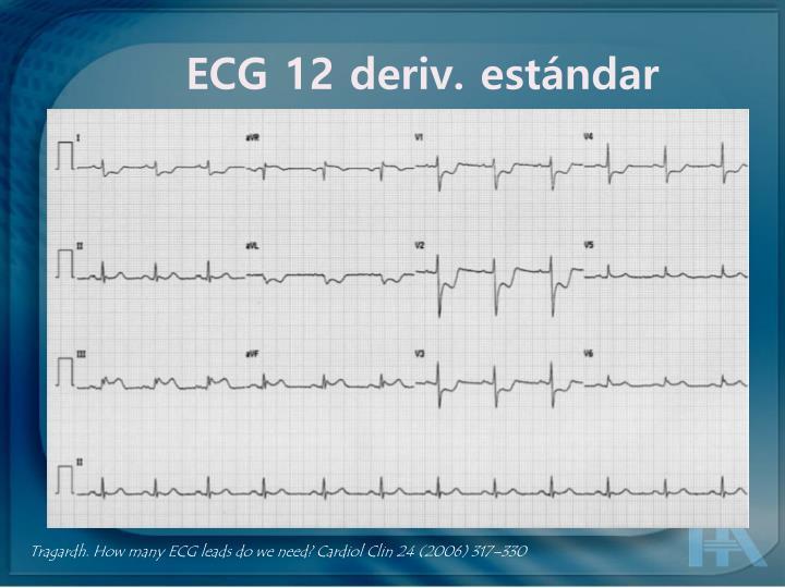 ECG 12 deriv. estándar