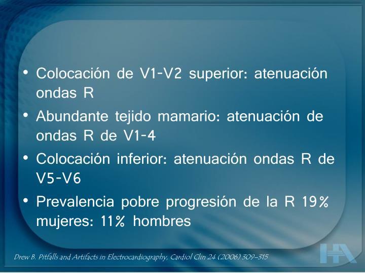 Colocación de V1-V2 superior: atenuación ondas R