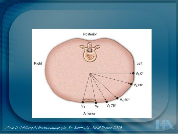 Mirvis D, Goldberg A. Electrocardiography. En: Braunwald´s Heart Disease, 2006