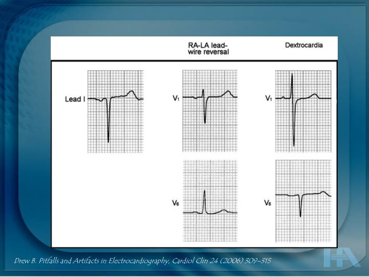 Drew B. Pitfalls and Artifacts in Electrocardiography,