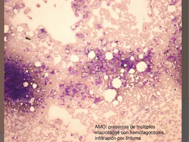 AMO: presencia de múltiples macrófagos con hemofagocitosis, infiltración por linfoma