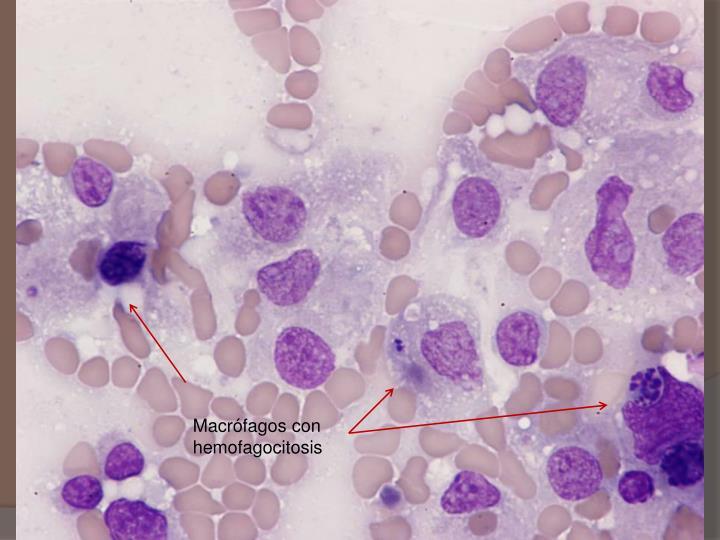 Macrófagos con hemofagocitosis