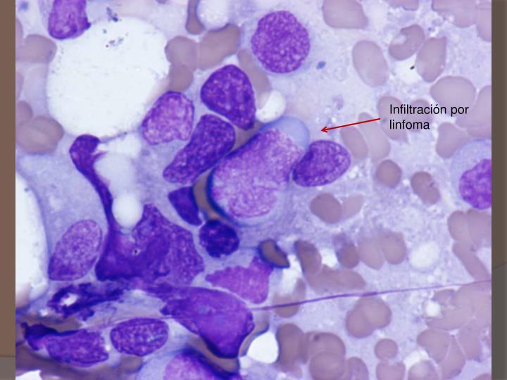 Infiltración por linfoma