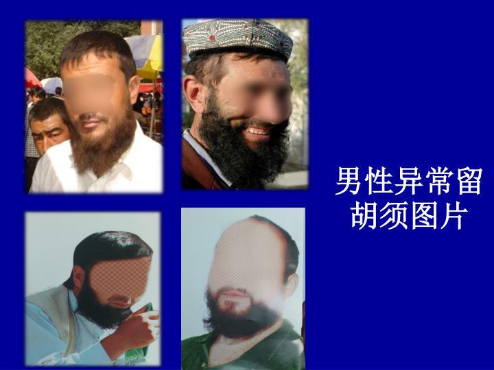 男性异常留胡须图片