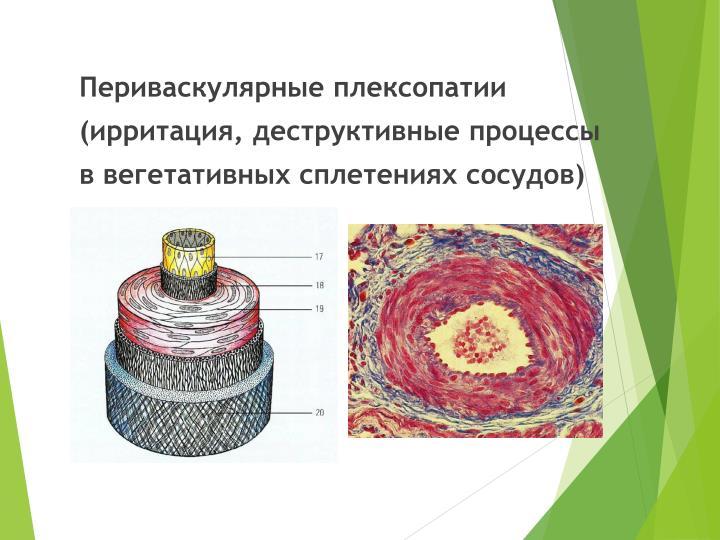 Периваскулярные плексопатии