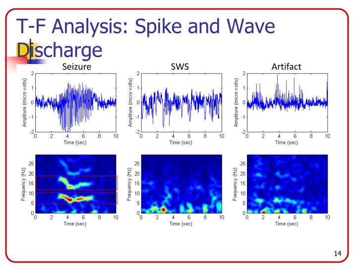 T-F Analysis: Spike and Wave Discharge