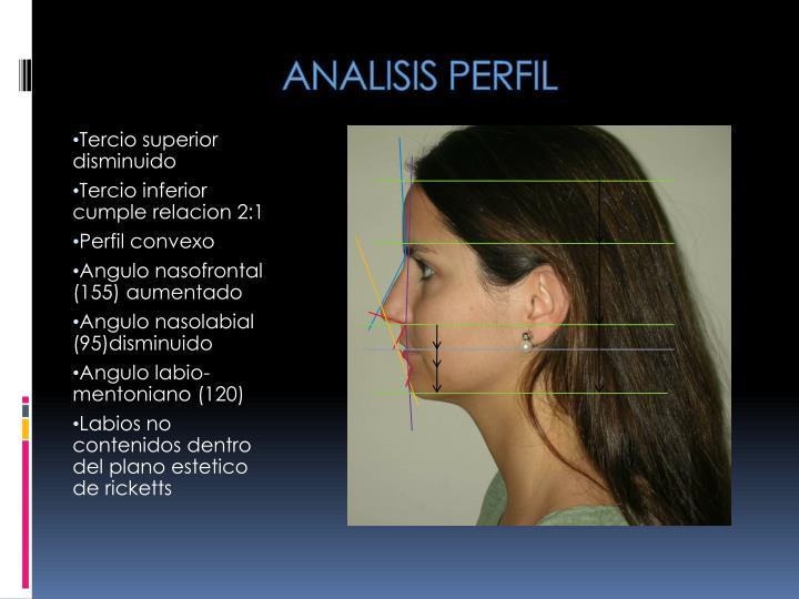 ANALISIS PERFIL