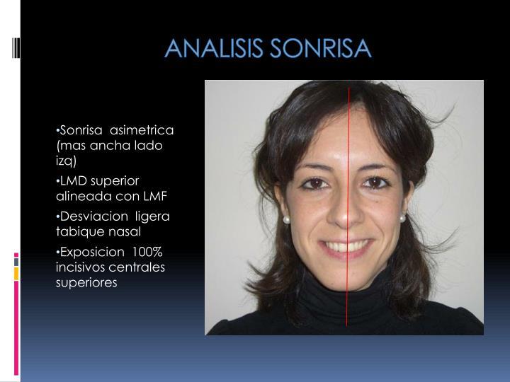 ANALISIS SONRISA