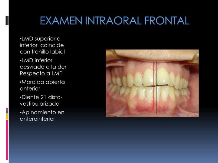 EXAMEN INTRAORAL FRONTAL